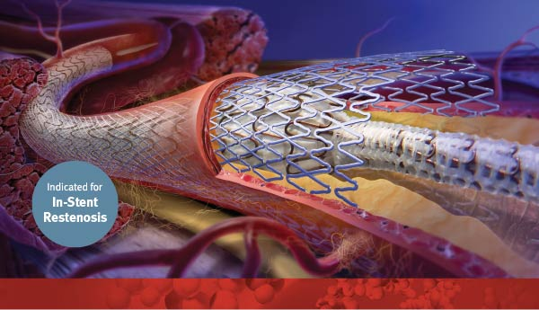 Indicated for In-Stent Restenosis